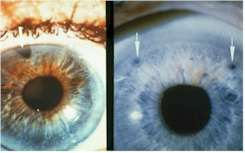 An iridotomy is an opening created in the iris, usually by a laser