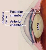 The posterior chamber is the space between the back of the iris and the front face of the vitreous